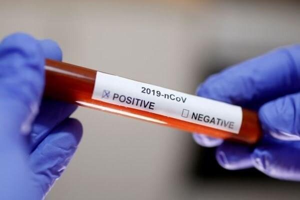 استفاده غیرانسانی انگلیس برای تست واکسن کرونا