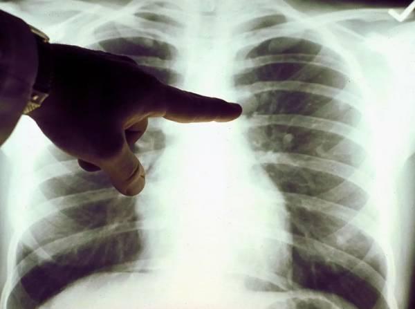 علائم احتیاج بدن به اسکن هسته ای ریه